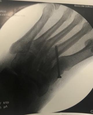 Midfoot Pin