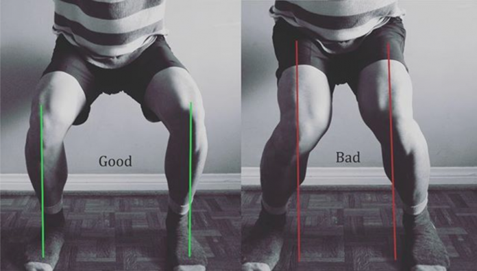 Knee Collapse