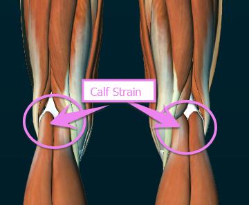 Calf Strain
