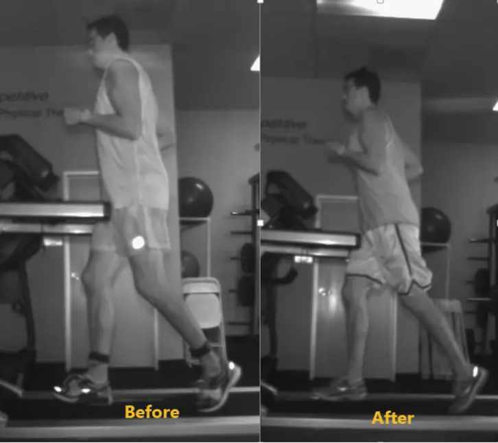 Limited Hip Extension