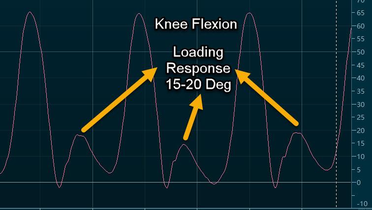 Knee Flexion Loading  Response